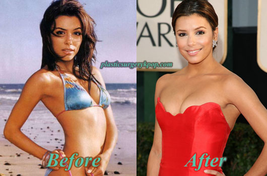 EvaLongoriaBreastImplants Eva Longoria Plastic Surgery Before and After Pictures