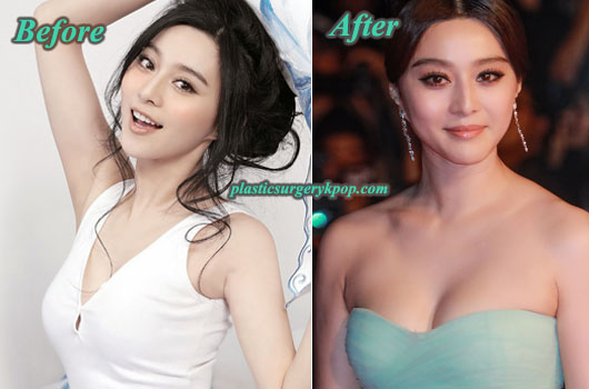 FanBingbingBreastImplants Fan Bingbing Plastic Surgery Before & After Pictures
