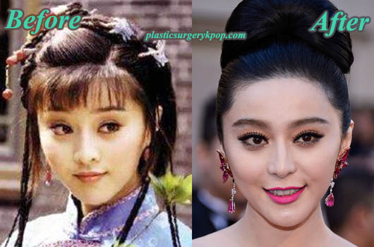 FanBingbingPlasticSurgery Fan Bingbing Plastic Surgery Before & After Pictures