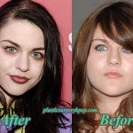 Frances Bean Cobain Plastic Surgery Before After Nose Job, Boobs Job