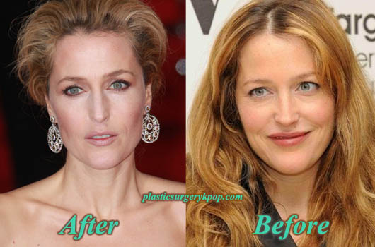 GillianAndersonBotoxNoseJob Gillian Anderson Plastic Surgery Nose Job, Botox Before After Pictures