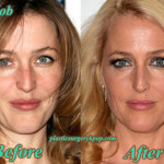 Gillian Anderson Plastic Surgery Nose Job, Botox Before After Pictures