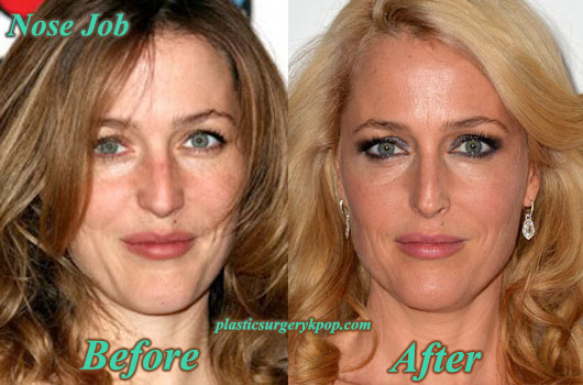 GillianAndersonPlasticSurgery Gillian Anderson Plastic Surgery Nose Job, Botox Before After Pictures