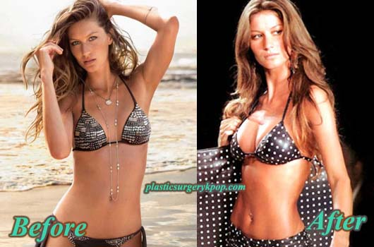 GiseleBundchenBreastImplants Gisele Bundchen Nose Job Breast Implants Plastic Surgery Before After