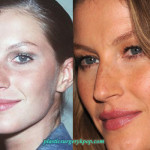 Gisele Bundchen Nose Job Breast Implants Plastic Surgery Before After