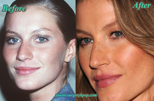 GiseleBundchenPlasticSurgery Gisele Bundchen Nose Job Breast Implants Plastic Surgery Before After