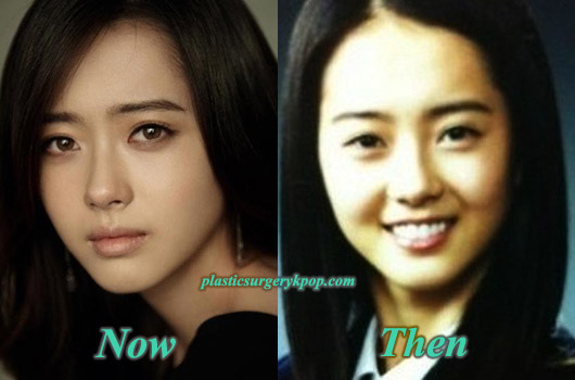 GoAraPlasticSurgeryPicture Goo Hara Plastic Surgery Rumor Before and After Pictures