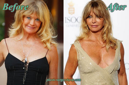 GoldieHawnBoobJob Goldie Hawn Plastic Surgery Before After Pictures