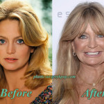 Goldie Hawn Plastic Surgery Before After Pictures