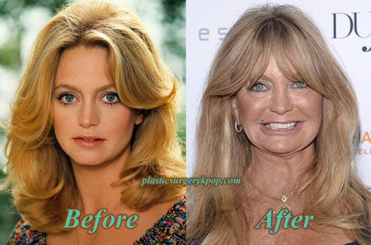 GoldieHawnPlasticSurgery Goldie Hawn Plastic Surgery Before After Pictures