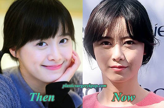 GooHyeSunPlasticSurgery Ku Hye Sun Plastic Surgery Rumor Before and After Pictures