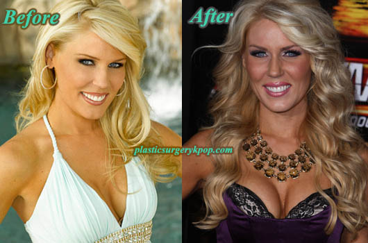 GretchenRossiBreastImplants Gretchen Rossi Plastic Surgery Before and After Pictures