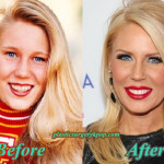 Gretchen Rossi Plastic Surgery Before and After Pictures