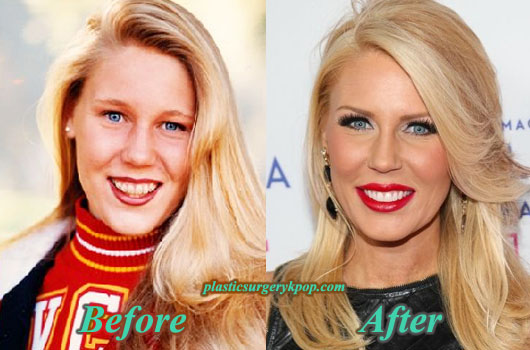 GretchenRossiPlasticSurgery Gretchen Rossi Plastic Surgery Before and After Pictures