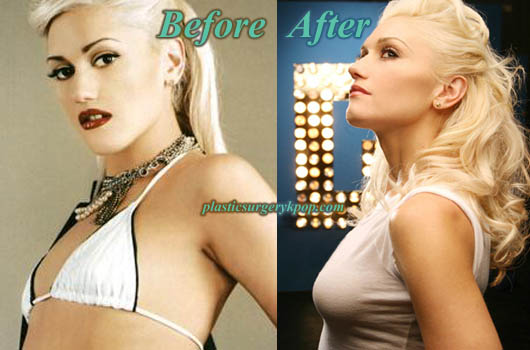 GwenStefaniBreastImplants Gwen Stefani Plastic Surgery Before and After Pictures