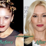 Gwen Stefani Plastic Surgery Before and After Pictures