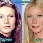 Gwyneth Paltrow Plastic Surgery Before After Pictures