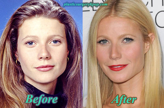 GwynethPaltrow Gwyneth Paltrow Plastic Surgery Before After Pictures