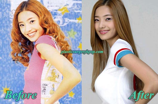 HanCheYoungBoobJob Han Chae Young Plastic Surgery Before and After