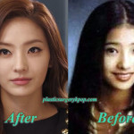 Han Chae Young Plastic Surgery Before and After
