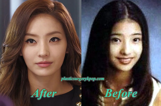 HanCheYoungPlasticSurgery Han Chae Young Plastic Surgery Before and After