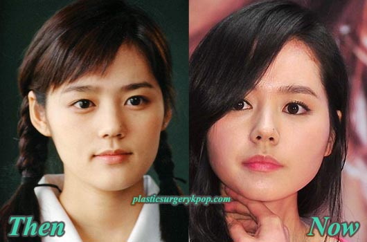 HanGaInBeforeAfter Han Ga In Plastic Surgery Rumor Before and After Pictures
