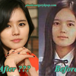 Han Ga In Plastic Surgery Rumor Before and After Pictures