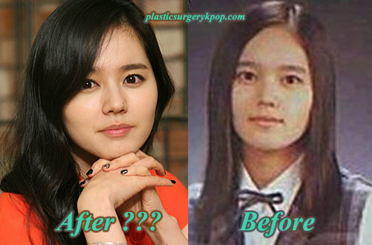 HanGaInPlasticSurgery Han Ga In Plastic Surgery Rumor Before and After Pictures