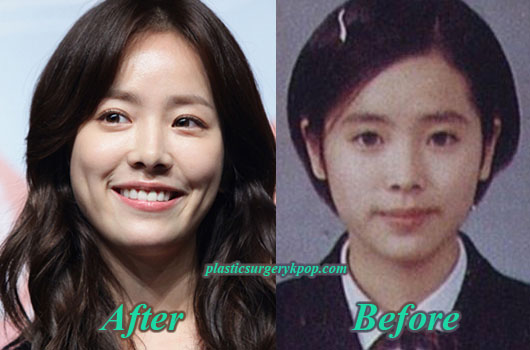 HanJiMinPlasticSurgery Han Ji Min Plastic Surgery Before After Pictures
