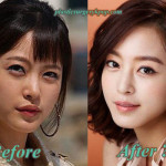 Han Ye Seul Plastic Surgery Rumor Before and After Picture
