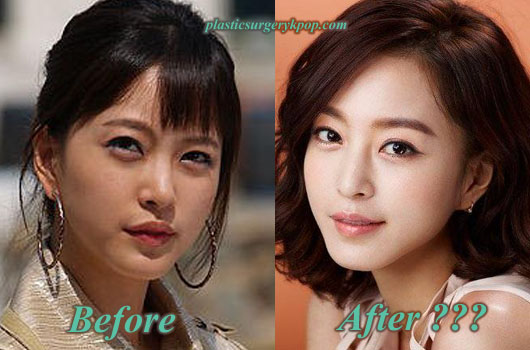 HanYeSeulPlasticSurgery Han Ye Seul Plastic Surgery Rumor Before and After Picture