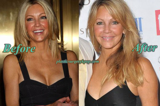 HeatherLocklearBoobJob Heather Locklear Plastic Surgery Photos Before and After