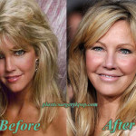 Heather Locklear Plastic Surgery Photos Before and After