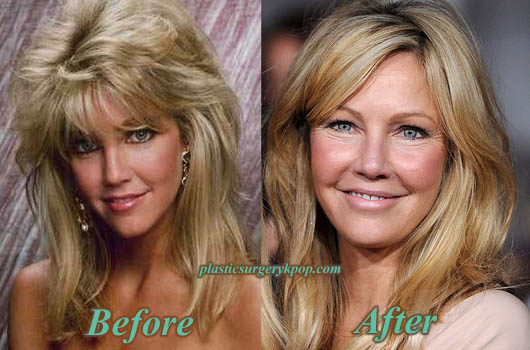 HeatherLocklearPlasticSurgery Heather Locklear Plastic Surgery Photos Before and After