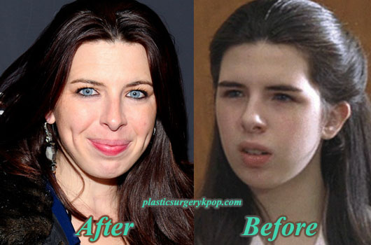 HeatherMatarazzoPlasticSurgery Heather Matarazzo Plastic Surgery Before and After Pictures