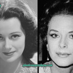 Hedy Lamarr Plastic Surgery Before After Pictures