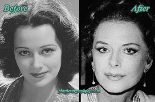 HedyLamarrPlasticSurgery Hedy Lamarr Plastic Surgery Before After Pictures