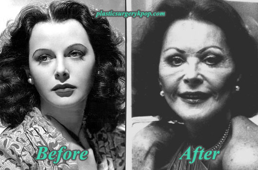 HedyLamarrPlasticSurgeryBeforeAfter Hedy Lamarr Plastic Surgery Before After Pictures