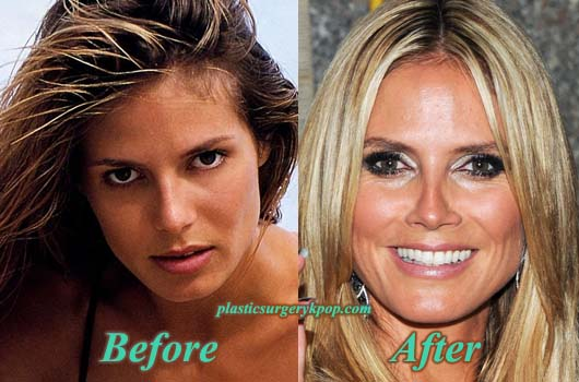 HeidiKlumNoseJob Heidi Klum Nose Job Before and After Plastic Surgery Pictures