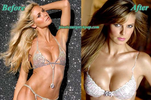 HeidiKlumPlasticSurgeryBreastImplants Heidi Klum Nose Job Before and After Plastic Surgery Pictures