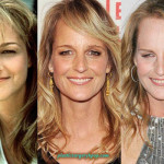 Helen Hunt Plastic Surgery Before and After Picture