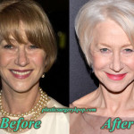Helen Mirren Plastic Surgery Before After Pictures