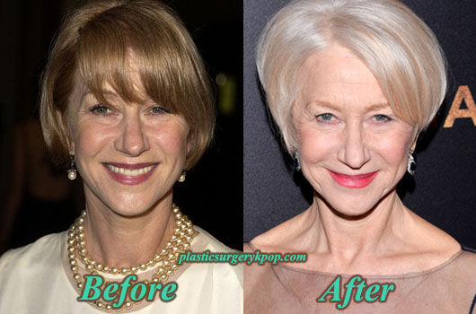 HelenMirrenPlasticSurgery Helen Mirren Plastic Surgery Before After Pictures