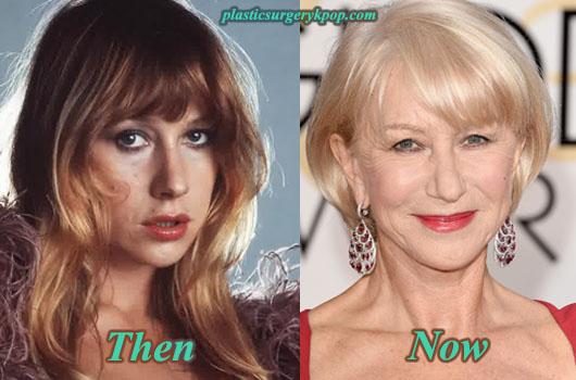 HelenMirrenPlasticSurgeryPicture Helen Mirren Plastic Surgery Before After Pictures