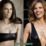Hilary Swank Plastic Surgery Before and After Pictures