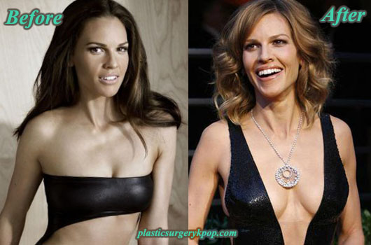 HilarySwankPlasticSurgery Hilary Swank Plastic Surgery Before and After Pictures