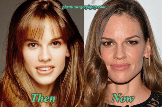 HilarySwankPlasticSurgeryPicture Hilary Swank Plastic Surgery Before and After Pictures