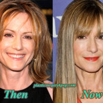 Holly Hunter Plastic Surgery Before After Facelift and Botox Pictures