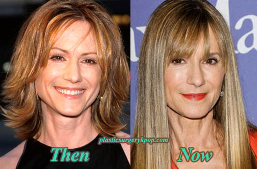 HollyHunterPlasticSurgery Holly Hunter Plastic Surgery Before After Facelift and Botox Pictures