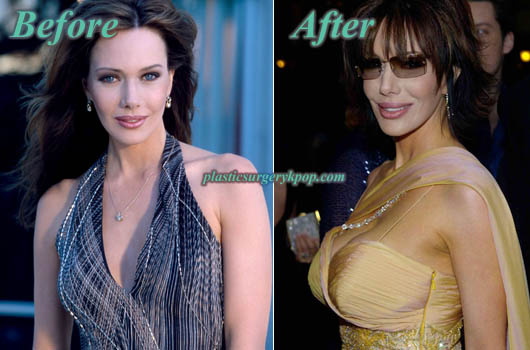 HunterTyloBreastImplants Hunter Tylo Plastic Surgery Before After Pictures